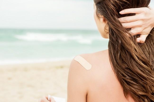 夏によくある肌トラブル!そんな時の緊急対処方法