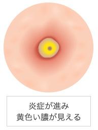 4段階で悪化する鼻ニキビの効果的な対処&予防法