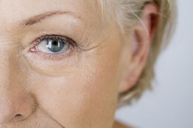 見た目年齢を左右する目の下のしわ、予防&改善で若々しい印象に