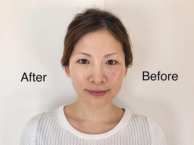 ファンデーションとコンシーラーで仕上げた後と前では肌の印象が異なります!